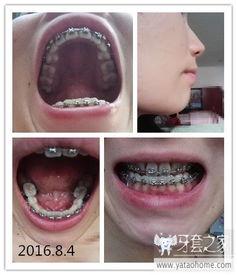高龄整牙,31岁开始记录牙套全过程