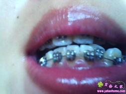 整牙进行时 牙套之家 牙齿矫正 Powered by Discuz -整牙进行时
