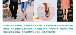 理疗拇外翻矫正器特价 大脚骨矫正 拇指外翻 脚趾外翻 拇趾矫正器