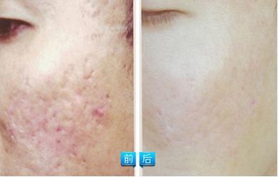 会呼吸的疤-彩光嫩肤祛痘疤是现在很多爱美朋友们都极力推荐的一种方式,采用一...