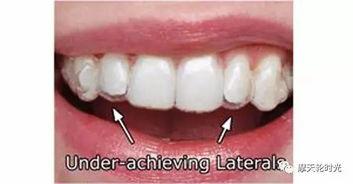 牙齿矫正:[3]带牙套的第三天的感受
