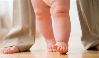 怎么预防宝宝罗圈腿