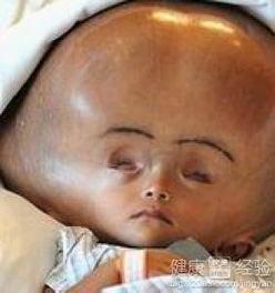 宝宝脑积水头型图片