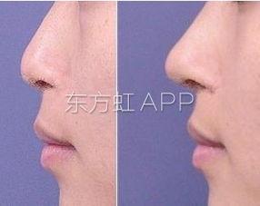 假体隆鼻风险有哪些