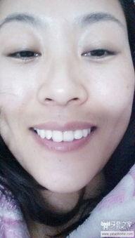 亲们,这样的牙齿有没有必要纠正呢 牙套脸形 中国最大的牙齿矫正论...