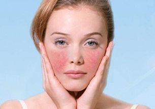 面部皮肤过敏怎么办?