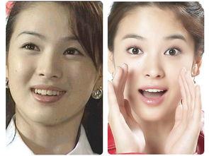 ...圆小S杨颖曾是牙套美女 整牙后变美的女星