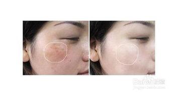 晒斑-各种不良皮肤改善方法