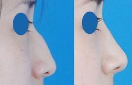 驼峰鼻矫正手术恢复时间要多久