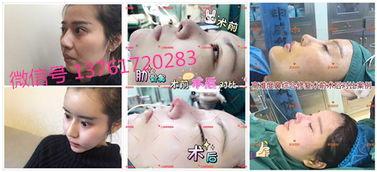 上海星璨国际整容水平及服务怎么样 上海便宜又实惠的整容医院有哪些
