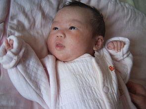 宝宝头部湿疹-+婴儿湿疹百科-宝宝皮肤过敏症状 宝宝皮肤过敏 皮肤过...