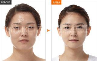 会呼吸的疤-天津美莱医学美容医院专家介绍:由于割双眼皮后都有一个肿胀恢复期...