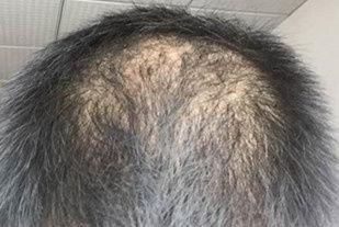 溢脂性脱发能治好吗 该如何治疗
