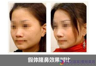 下,隆鼻手术是成功率最高的美容手术,只要处理得当,很少发生感染...