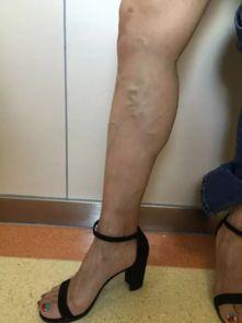 40多岁女模特的小腿严重静脉曲张-40岁女模特穿了几十年高跟鞋 小腿...