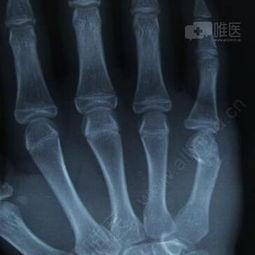 闭合髓内针治疗掌骨颈骨折