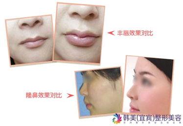 无创整形美容玻尿酸注射隆鼻有风险吗