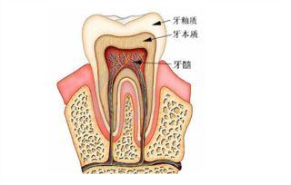牙疼切断神经可以吗,牙神经能抽掉吗,牙疼去除牙神经好吗