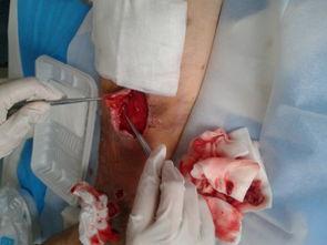 睾丸静脉曲张真人图片-静脉曲张手术后又出现怎么办