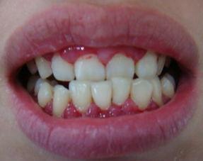 牙缝疙瘩怎么治疗