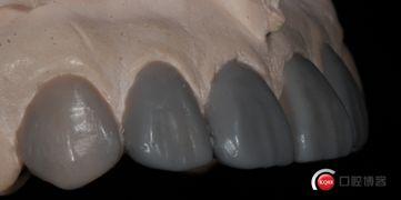 同 牙联邦技师张鼎易大师 合作 前牙美学贴面病例 二 康朝辉