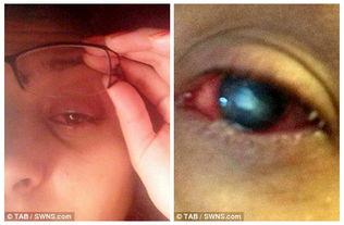 ...镜沾水致少女患寄生虫角膜炎几近失明