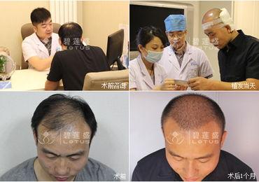 头发移植手术视频在线观看