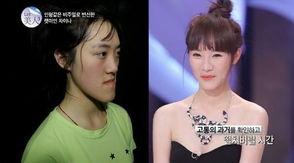 ...日讯 据韩国《朝鲜日报》消息,一名因下颌出奇地长而常常被嘲笑...