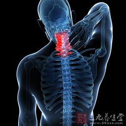 脊髓型颈椎病 常见症状及危害有哪些