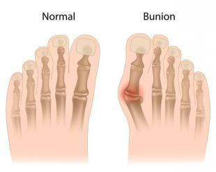 ...有什么方法可以矫正拇指外翻