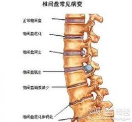 颈椎病的最好锻炼方法