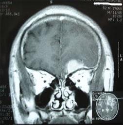 蝶骨脑膜瘤的眼眶病变