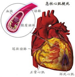 急性心肌梗死示意图出现胸痛、胸闷等不适要当心(资料图片)-电风...