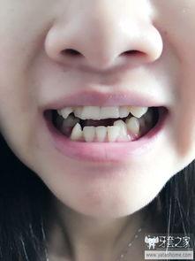 ...6岁大龄女青年整牙,戴牙套第五天