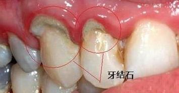 总洗牙也不管用,牙结石还是那么臭 教你三个小方轻松去除
