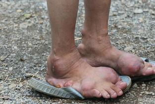 ...名严重的妇女,脚趾已经变形、回钩,已无法下地干活.-广西河池农...