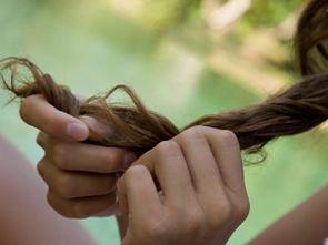 ...容易造成脂溢性脱发或头皮感染和毛囊炎. 3.病理性头屑:呈大块、...