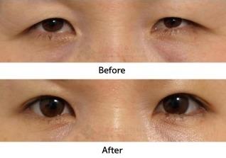 如何用运动和按摩方法康复眼皮下垂