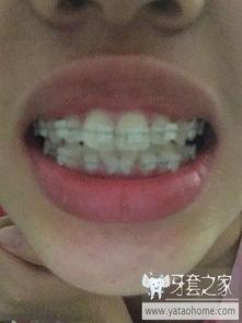20岁纪录牙套 记录青春 中国最大的牙齿矫正论坛及精神家园,互助...