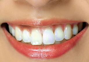 ...洁牙套餐 专家口腔检查 超声波洗牙 喷砂洁治 牙面抛光 冲洗 口腔护理...