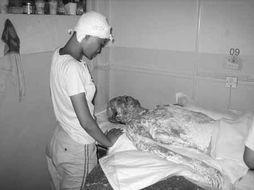 活割女人皮-扬州苏北人民医院烧伤科的医生告诉记者,这样的移植,申小莉至少还...