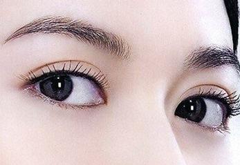 韩式切开重睑术一次性将小眯眼成变成美丽诱人的大眼睛,臃肿的上眼...