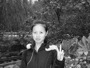 浙江一大学女生患骨癌 仍梦想重返T型台