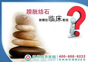 了解膀胱结石的症状 治疗不走误区
