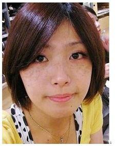 晒斑-祛斑 传明酸祛斑系列 瓷肌Chinaskin中国官方销售网站