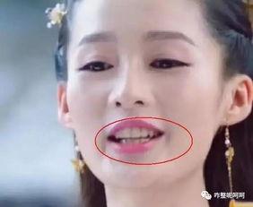 ,等着看周三的视频节目哈,有超... 还有一种人是牙长得乱七八糟,牙...