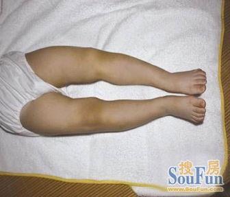 新生儿罗圈腿正常吗-宝宝O型腿,是否是纸尿裤惹的祸