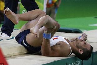 法国跳马运动员落地骨折 小腿90度弯曲