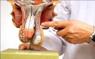精索静脉曲张的图片-精索静脉曲张常见的典型症状