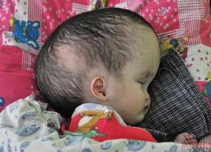 ...后,不少出生的婴儿都出现头部畸形的现象,塞米巴拉金斯克同样也...